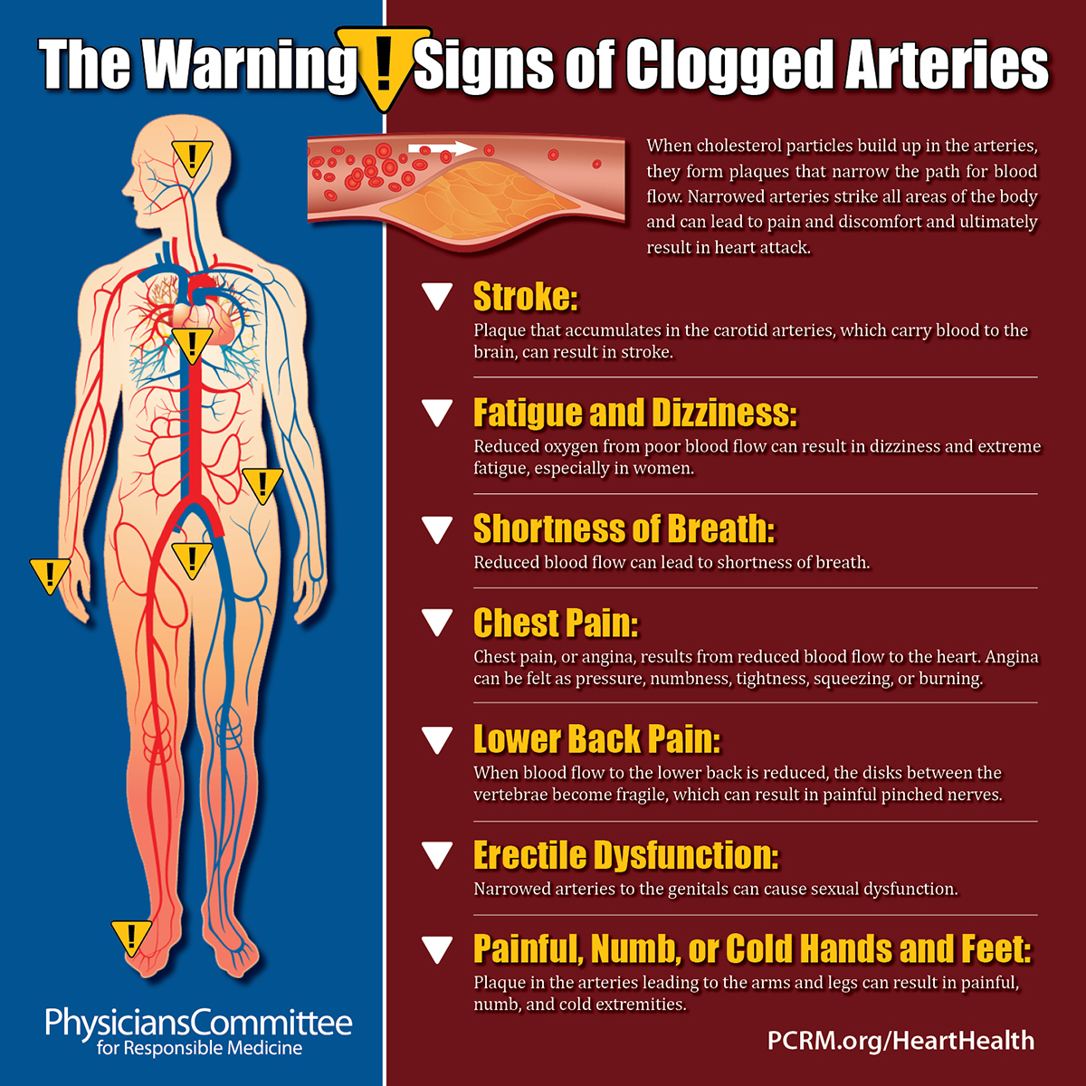 clogged-arteries-signs